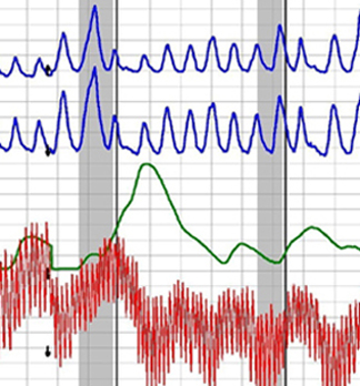 Los Angeles polygraph test